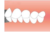 前歯が出ている(出っ歯)