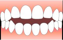 前歯が閉じない
