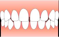 すきっ歯である
