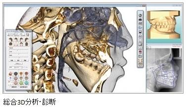 総合3D分析・診断