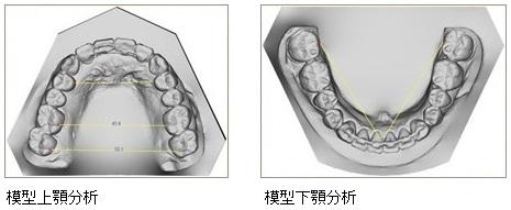 模型上顎・下顎分析
